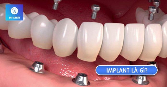 implant là gì