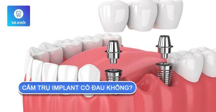 cắm trụ implant có đau không