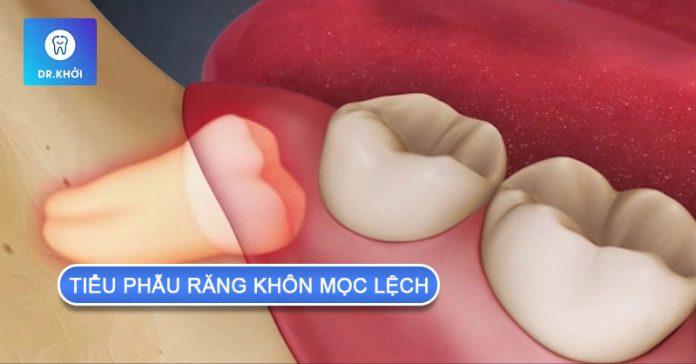 tiểu phẫu răng khôn mọc lệch