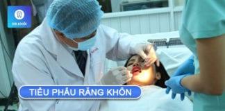 tiểu phẫu răng khôn