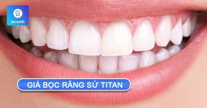 giá bọc răng sứ titan